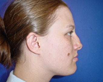 Septoplasty and Rhinoplasty, Nose surgery before 680274