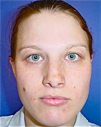 Septoplasty and Rhinoplasty, Nose surgery 680274
