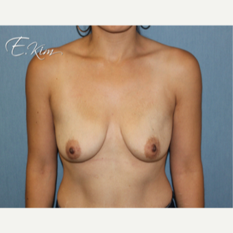 25-34 year old woman treated with Breast Lift with Implants before 3102629