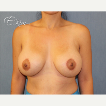 25-34 year old woman treated with Breast Lift with Implants after 3102629