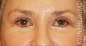 Eye Bag Surgery after 886859
