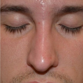 23 Year Old Male Treated For Nasal Deformity 1447477