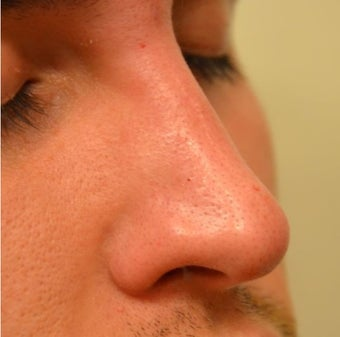 23 Year Old Male Treated For Nasal Deformity after 1447477
