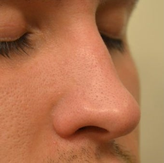 23 Year Old Male Treated For Nasal Deformity before 1447477