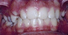 17 or under year old woman treated with Braces before 3036887