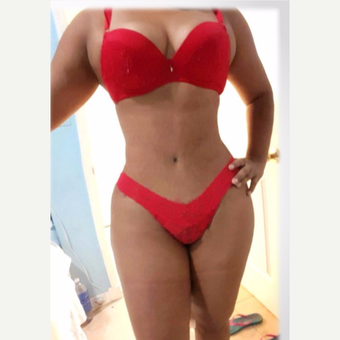 34 year old woman treated with tummy tuck, liposculpture, after 4 months post-op after 3176013