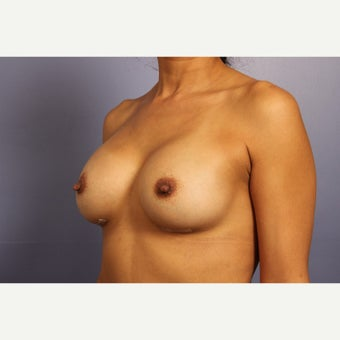 30s female with silicone gel implants after 1630066