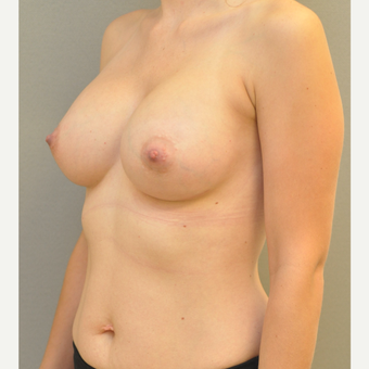 18-24 year old woman treated with Breast Augmentation after 3842565