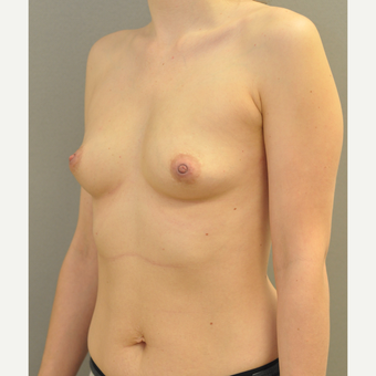 18-24 year old woman treated with Breast Augmentation before 3842565