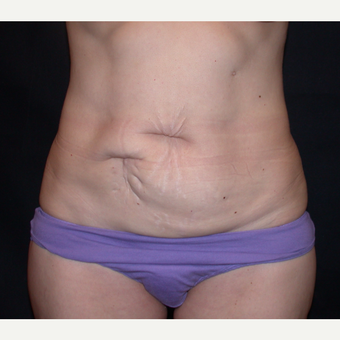 45-54 year old woman treated with Tummy Tuck before 3345084