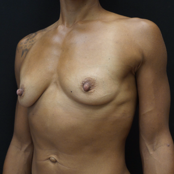 Breast Augmentation before 3012519
