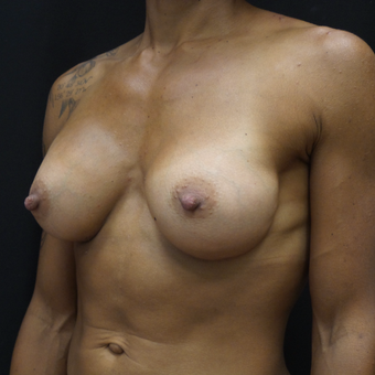Breast Augmentation after 3012519