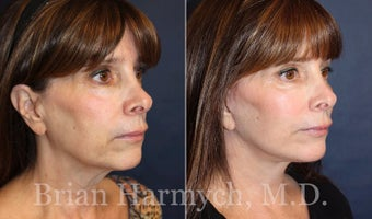 62 year-old female before and 3.5 months after Facelift and Fat Transfer (Autologous Fat Transplant) before 3445866