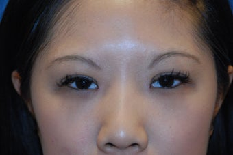 Asian Eyelid Surgery (Blepharoplasty) ~ Suture Method after 166205