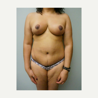 45-54 year old woman treated with Breast Reduction after 3454130