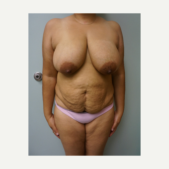 45-54 year old woman treated with Breast Reduction before 3454130