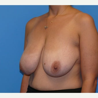 35-44 year old woman treated with Breast Lift 1746529