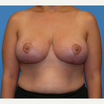 35-44 year old woman treated with Breast Lift after 1746529