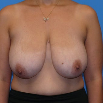 35-44 year old woman treated with Breast Lift before 1746529