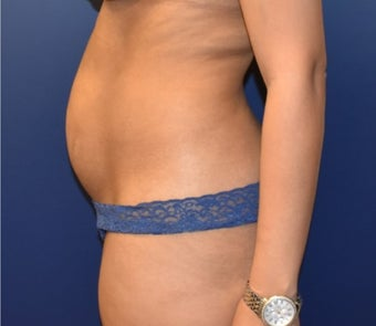 35-44 year old woman treated with Liposuction before 3348737