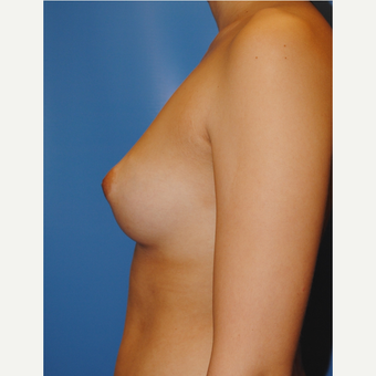 25 year old woman treated with Breast Augmentation, 350 cc MPP before 3623549