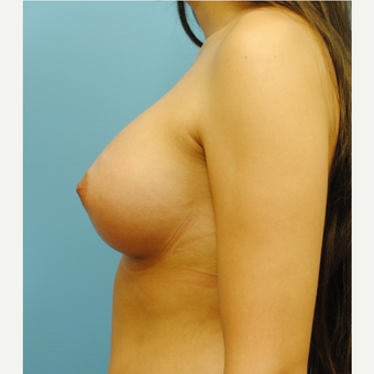 25 year old woman treated with Breast Augmentation, 350 cc MPP after 3623549