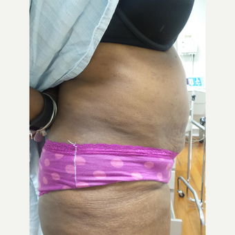 35-44 year old woman treated with Exilis after 3528526