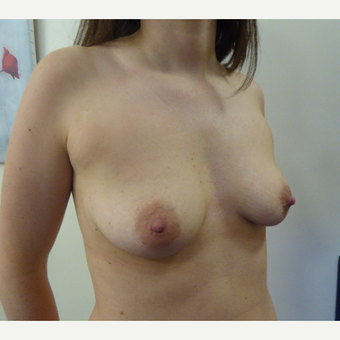 25-34 year old woman treated with Breast Augmentation before 3375606