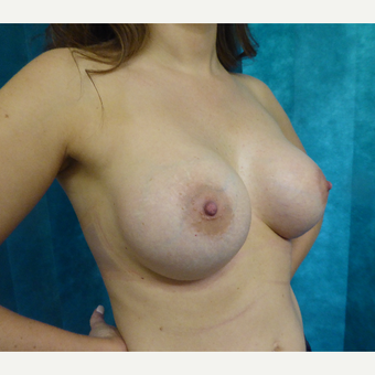 25-34 year old woman treated with Breast Augmentation after 3375606