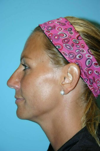 46 Year Old Female treated for neck laxity with Ultherapy after 1056616