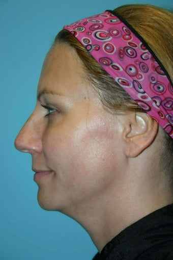 46 Year Old Female treated for neck laxity with Ultherapy before 1056616