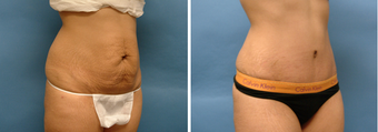 Tummy Tuck  after 874537