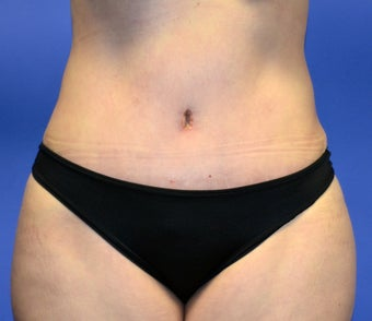 38 year old that had a Tummy Tuck, liposuction of her waist. after 917963