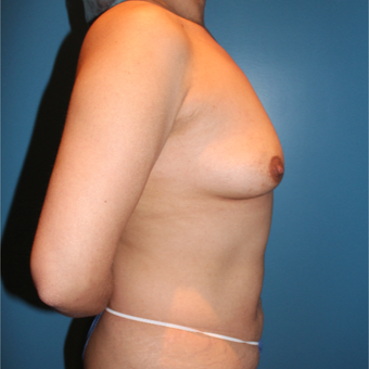 35-44 year old woman treated with Breast Augmentation before 3806201