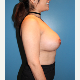 35-44 year old woman treated with Breast Augmentation after 3806201