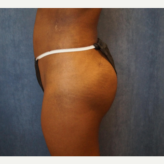 35-44 year old woman treated with Brazilian Butt Lift after 3683958