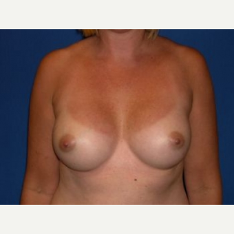 25-34 year old woman treated with Breast Augmentation after 3009226