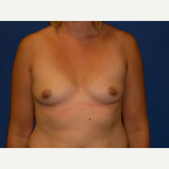 25-34 year old woman treated with Breast Augmentation before 3009226