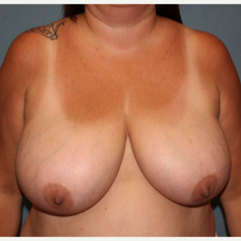 45-54 year old woman treated with Breast Lift before 3213851
