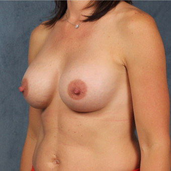 40 year old woman with post prenancy deflation undergoes natural silicone gel breast augmentation. after 3045157