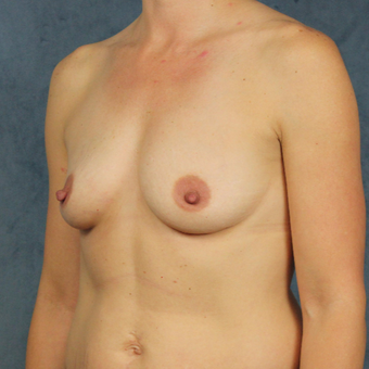 40 year old woman with post prenancy deflation undergoes natural silicone gel breast augmentation. before 3045157