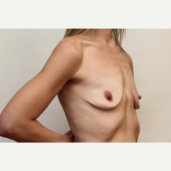 18-24 year old woman treated with Breast Augmentation before 3060211