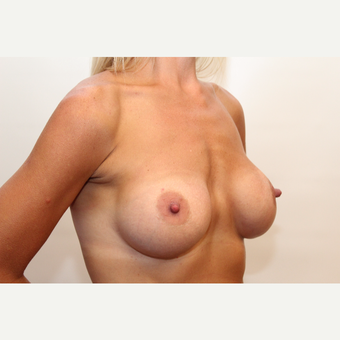18-24 year old woman treated with Breast Augmentation after 3060211