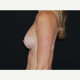 25-34 year old woman treated with Breast Implants after 3651601