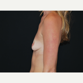 25-34 year old woman treated with Breast Implants before 3651601