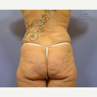45-54 year old woman treated with Butt Augmentation before 3386639