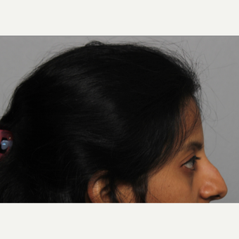 35-44 year old woman treated with Rhinoplasty before 3424433
