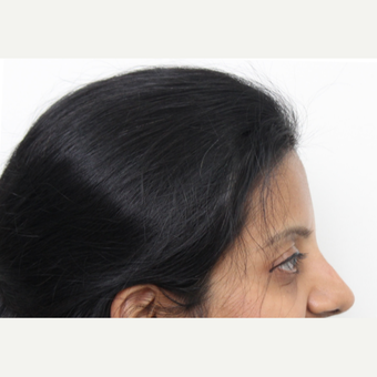 35-44 year old woman treated with Rhinoplasty after 3424433