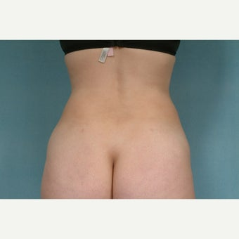 35-44 year old woman treated with Liposuction 1609147
