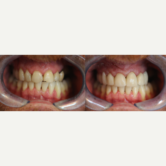 Smile makeover with Enlighten Whitening + 6 Cerac Crowns before 3174486